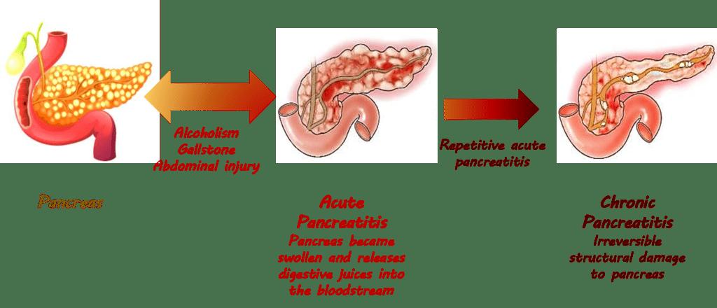 Problems about Pancreas