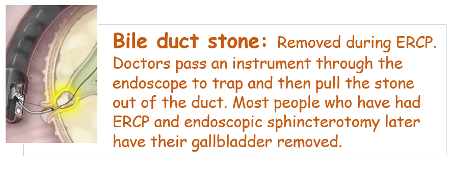 Treatment for stones in the bile ducts
