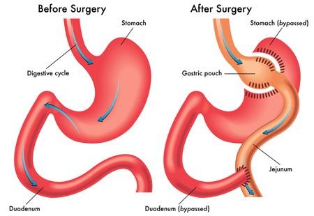 Gastric Bypass (Roux-en-Y)